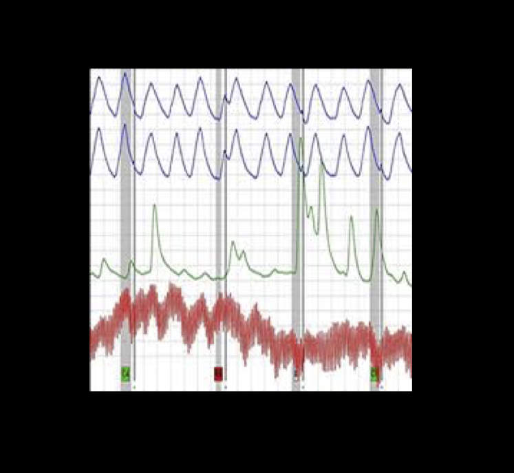 Frequently Asked Questions (FAQ) - The Polygraph Guy